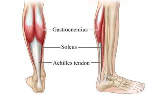 How do I treat My Achilles Injury?