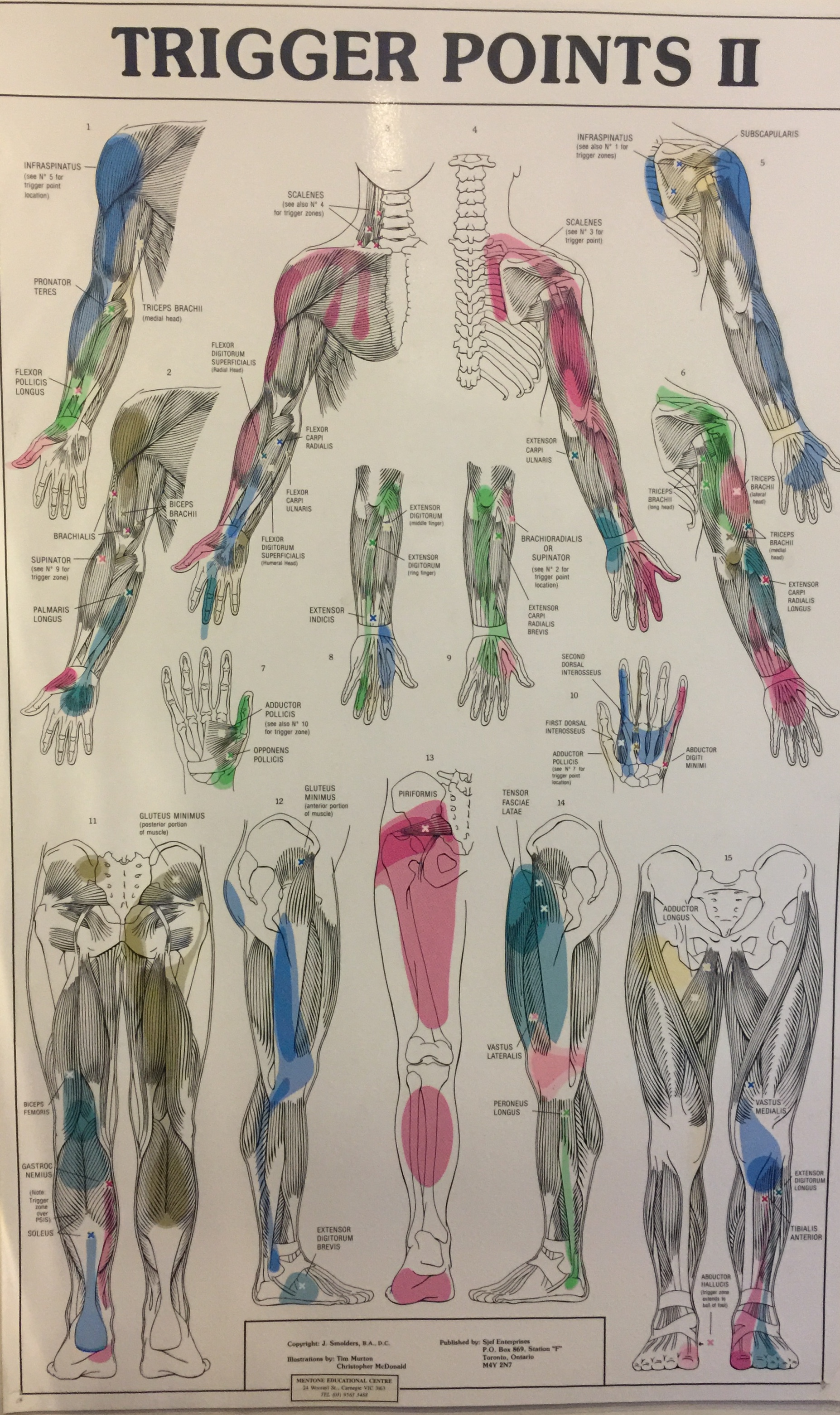 Trigger Points common in Colac