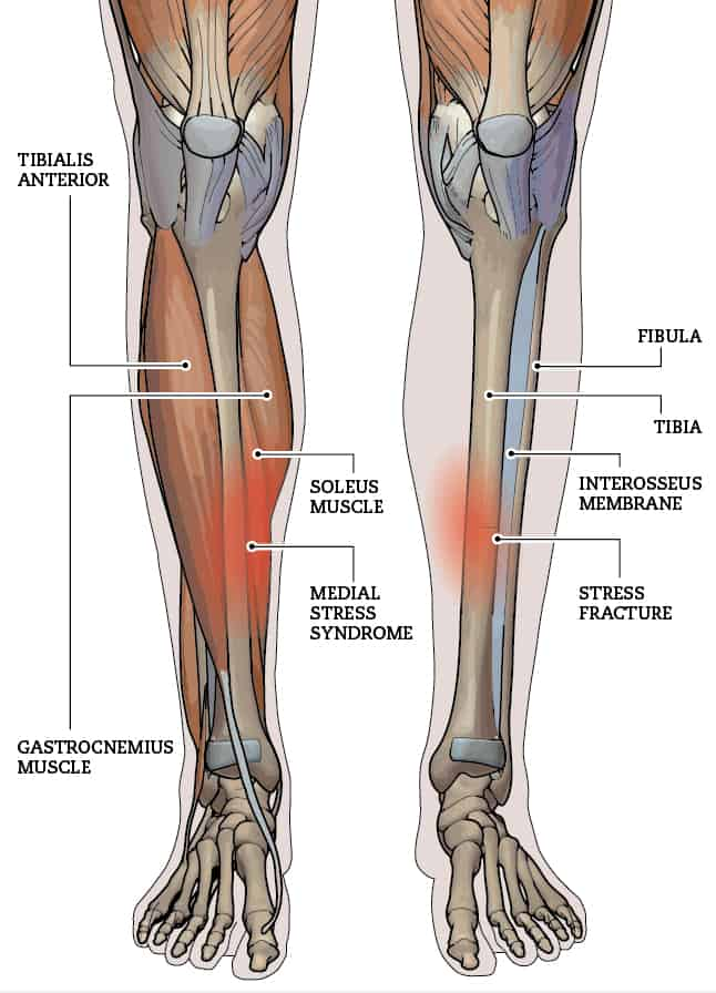 What are Shin Splints and how to fix them!